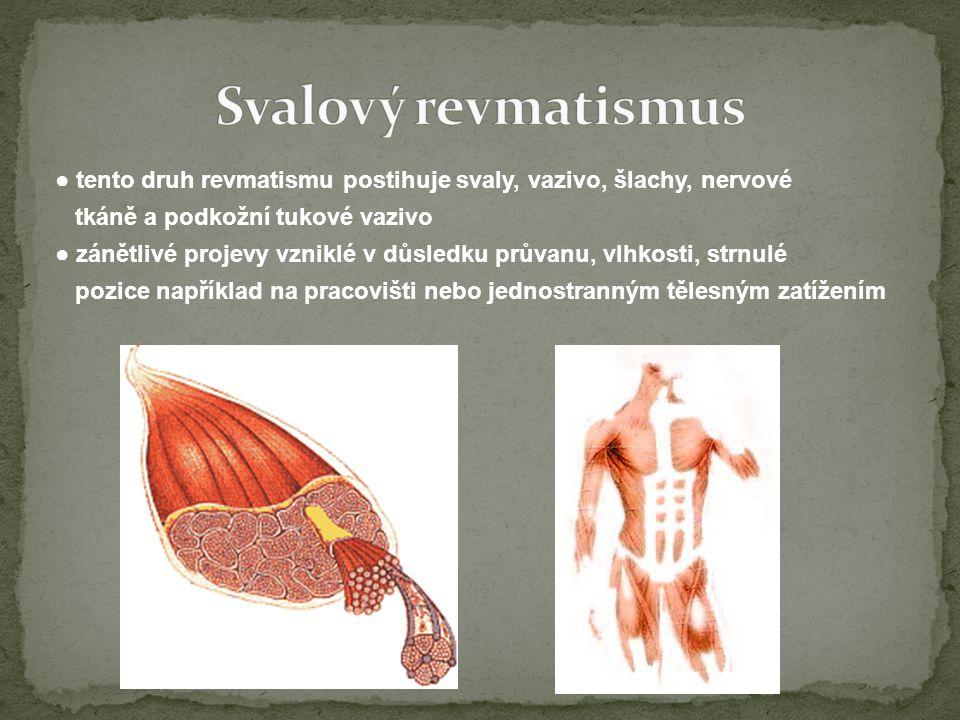 Svalový revmatismus
