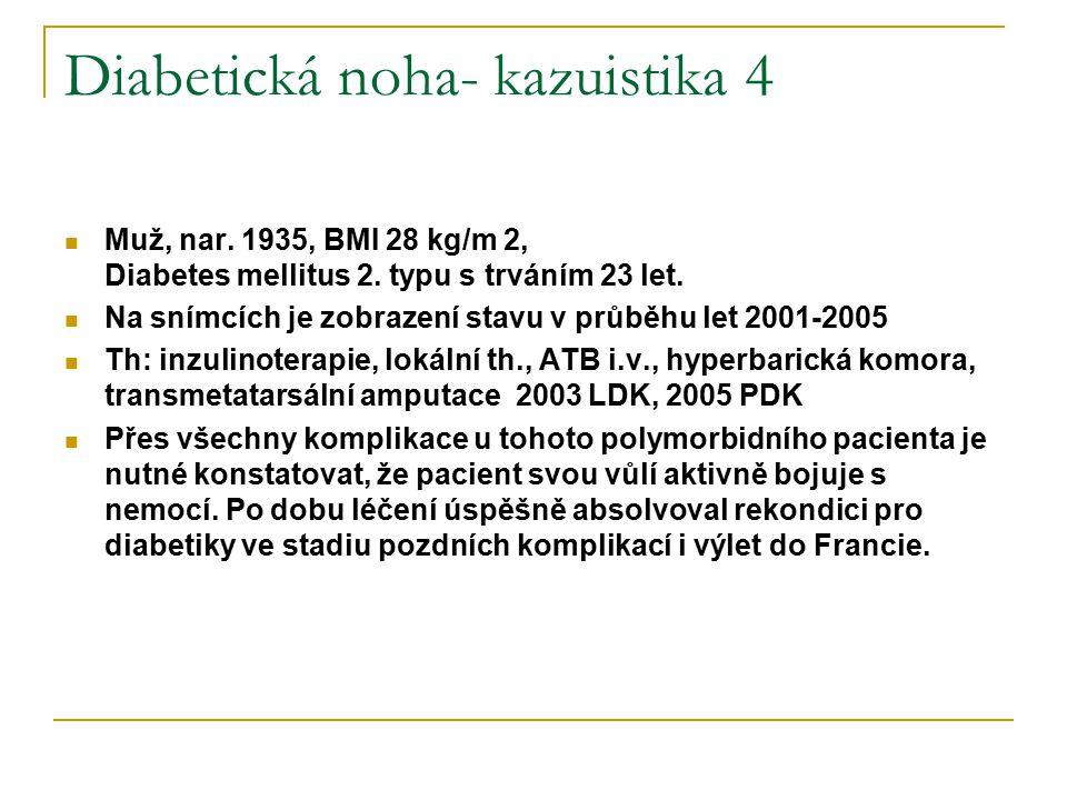 Diabetická noha- kazuistika 4