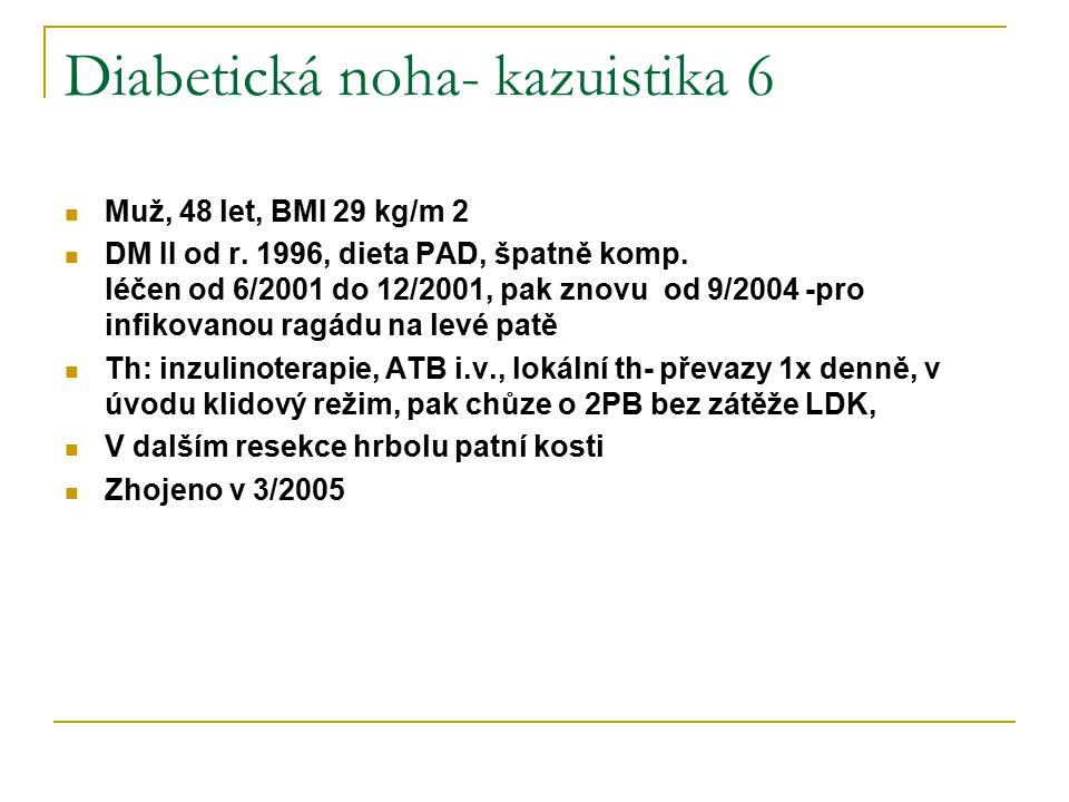 Diabetická noha- kazuistika 6