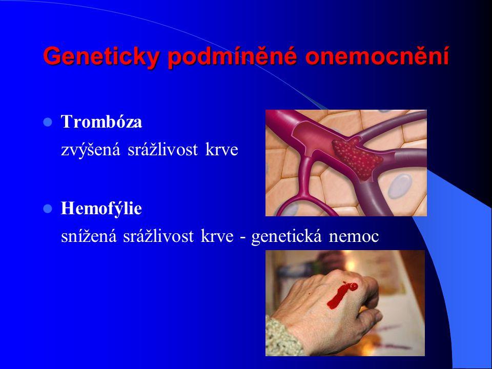 Geneticky podmíněné onemocnění