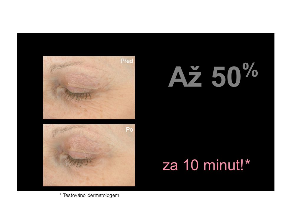 fewer crow's feet area lines & wrinkles za 10 minut!*