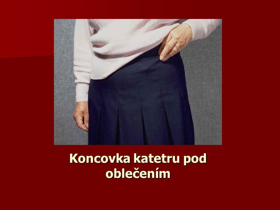Koncovka katetru pod oblečením