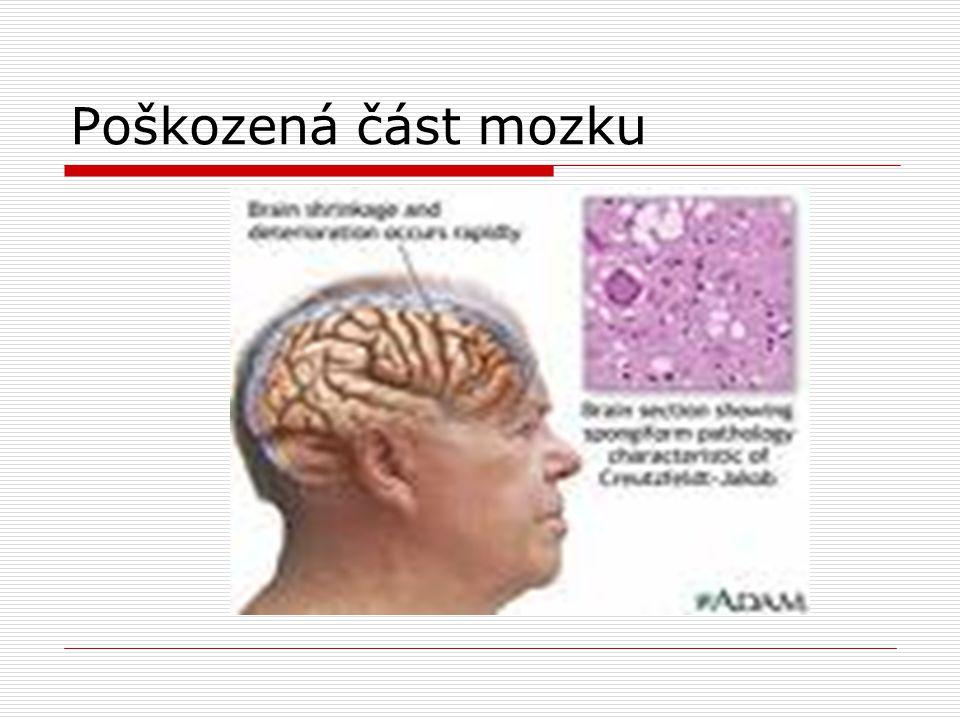 Poškozená část mozku