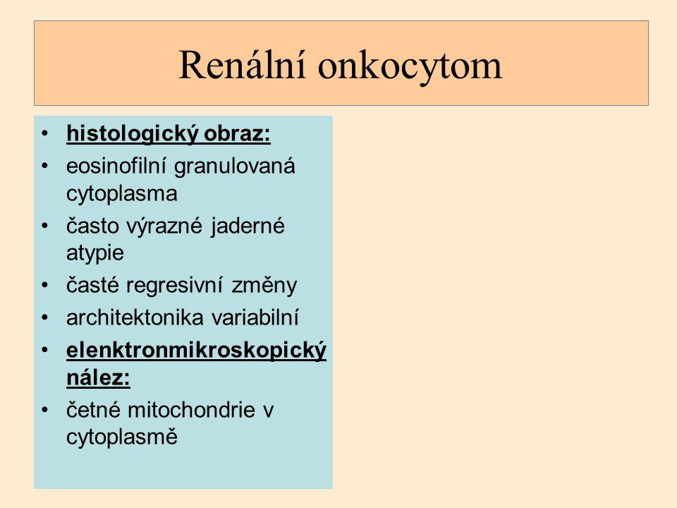 Renální onkocytom histologický obraz: