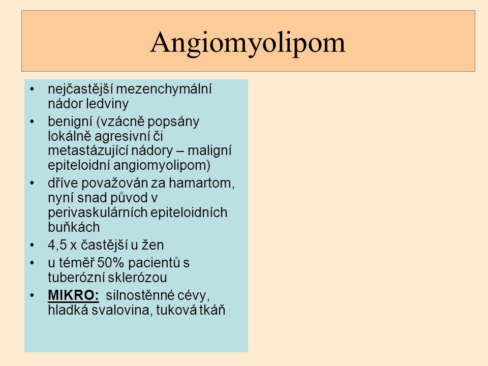 Angiomyolipom nejčastější mezenchymální nádor ledviny