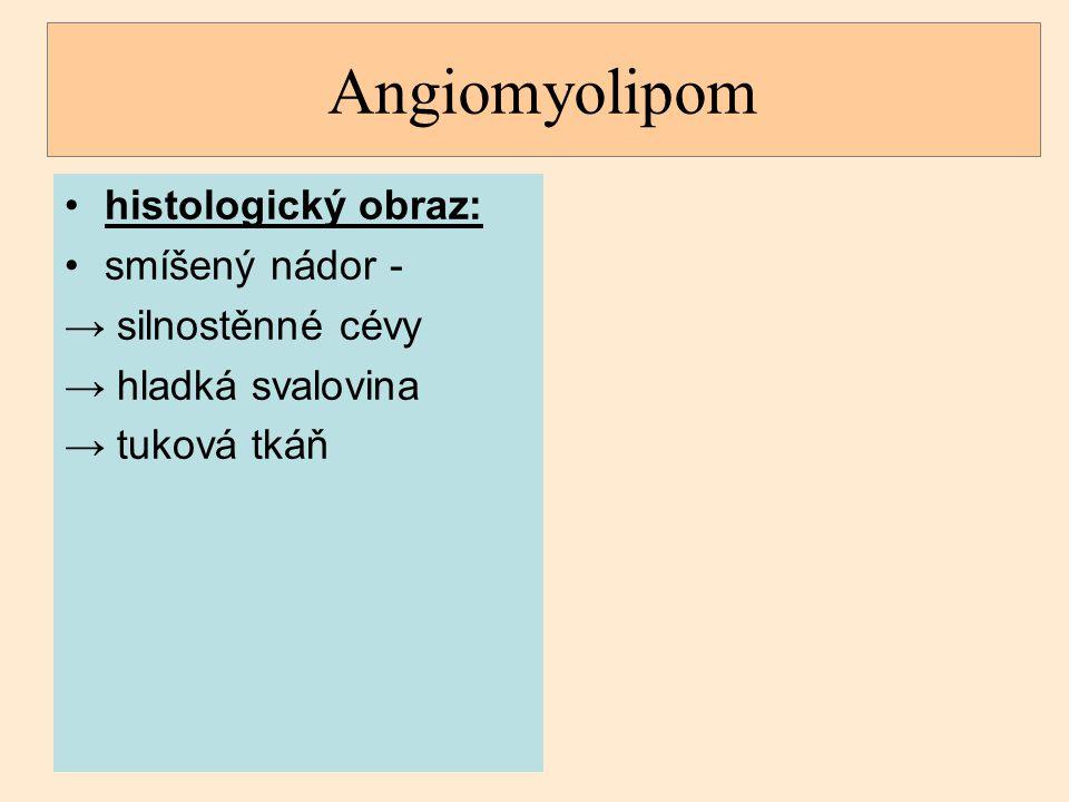 Angiomyolipom histologický obraz: smíšený nádor - silnostěnné cévy