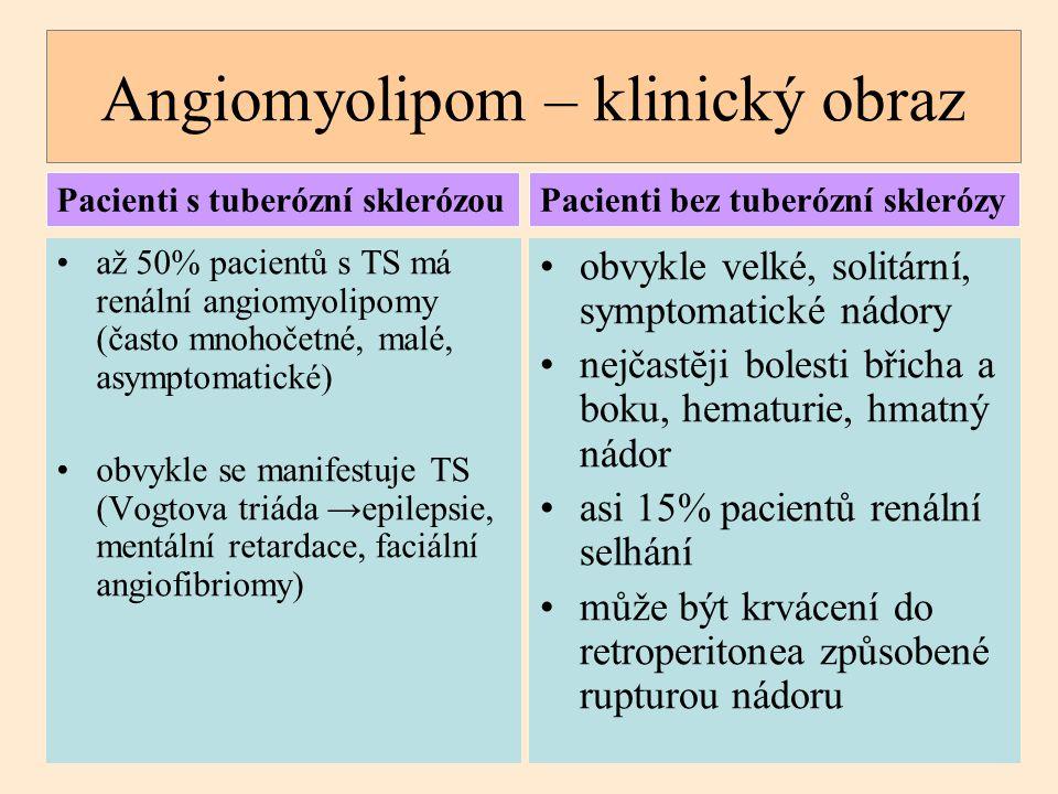 Angiomyolipom – klinický obraz