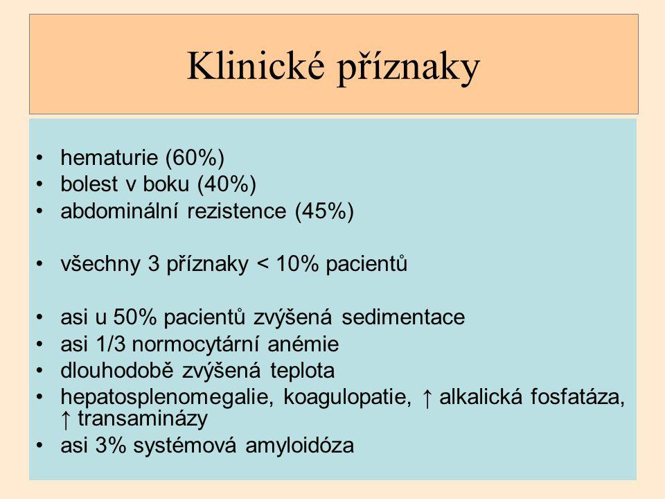 Klinické příznaky hematurie (60%) bolest v boku (40%)