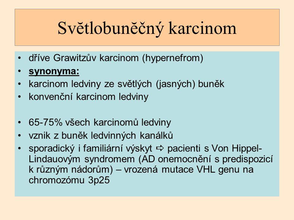 Svĕtlobunĕčný karcinom