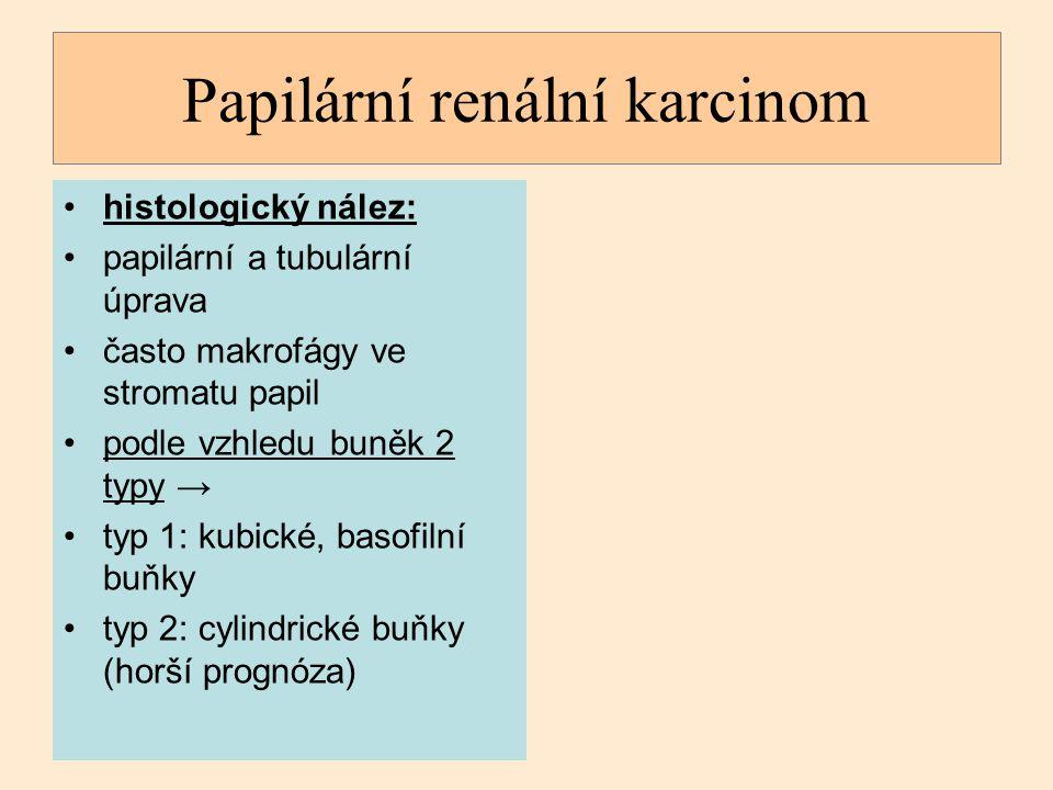 Papilární renální karcinom