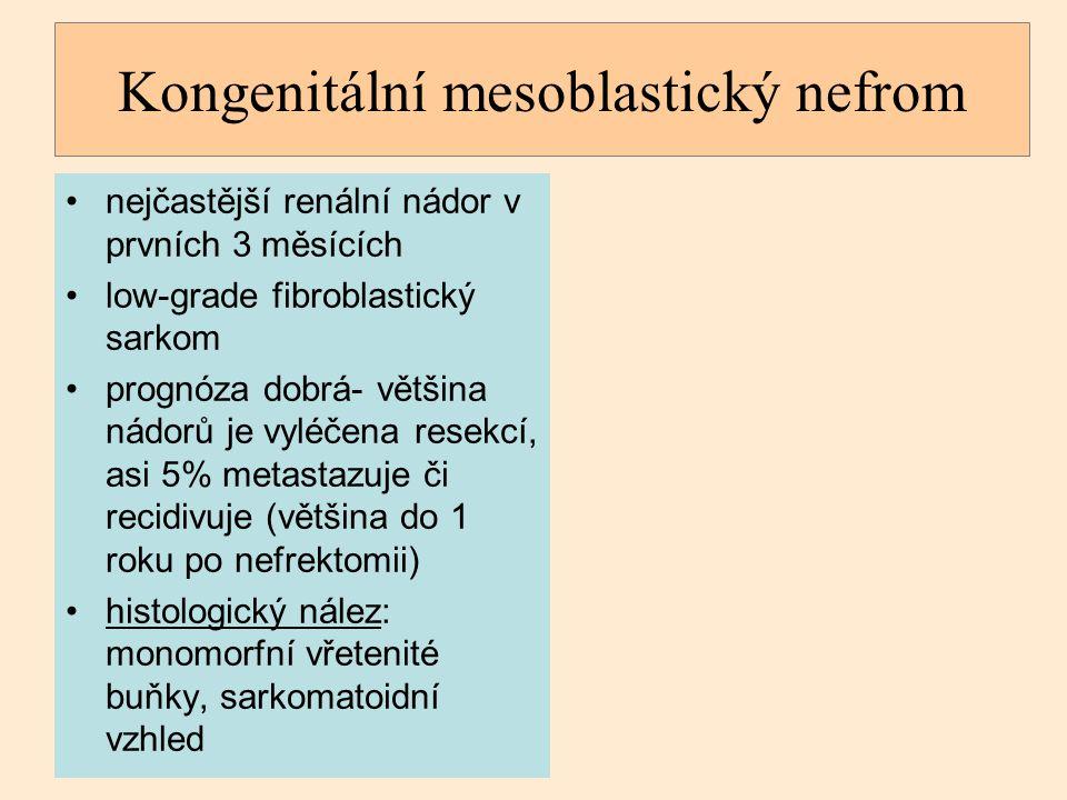 Kongenitální mesoblastický nefrom