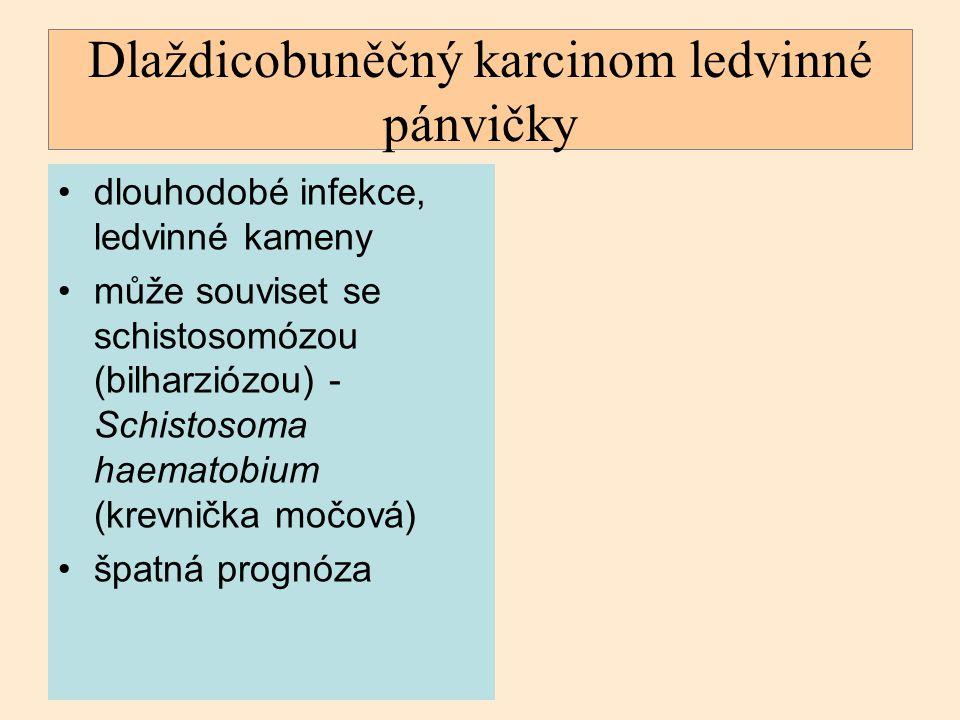 Dlaždicobuněčný karcinom ledvinné pánvičky