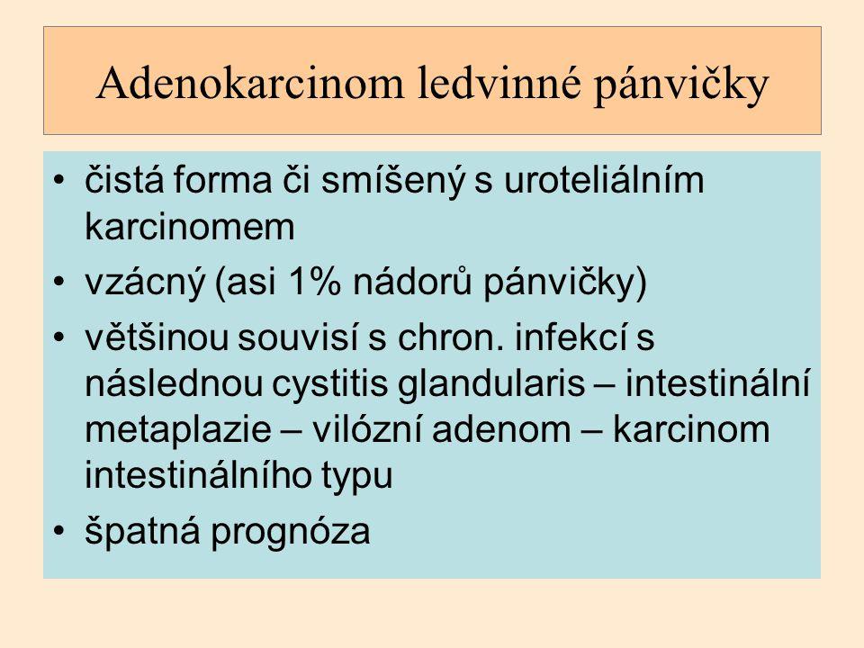 Adenokarcinom ledvinné pánvičky