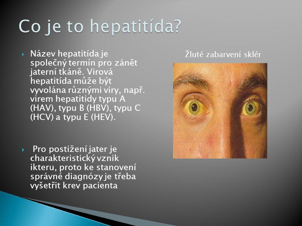 Co je to hepatitída