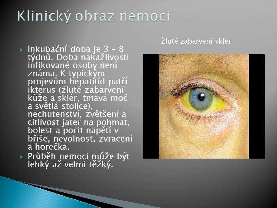 Klinický obraz nemoci Žluté zabarvení sklér.