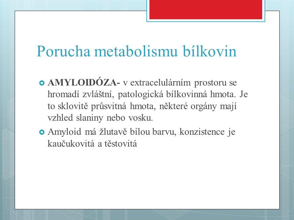 Porucha metabolismu bílkovin