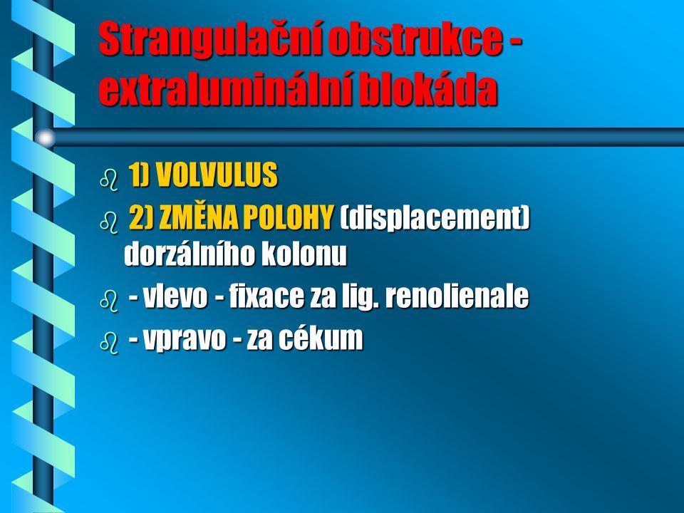 Strangulační obstrukce - extraluminální blokáda