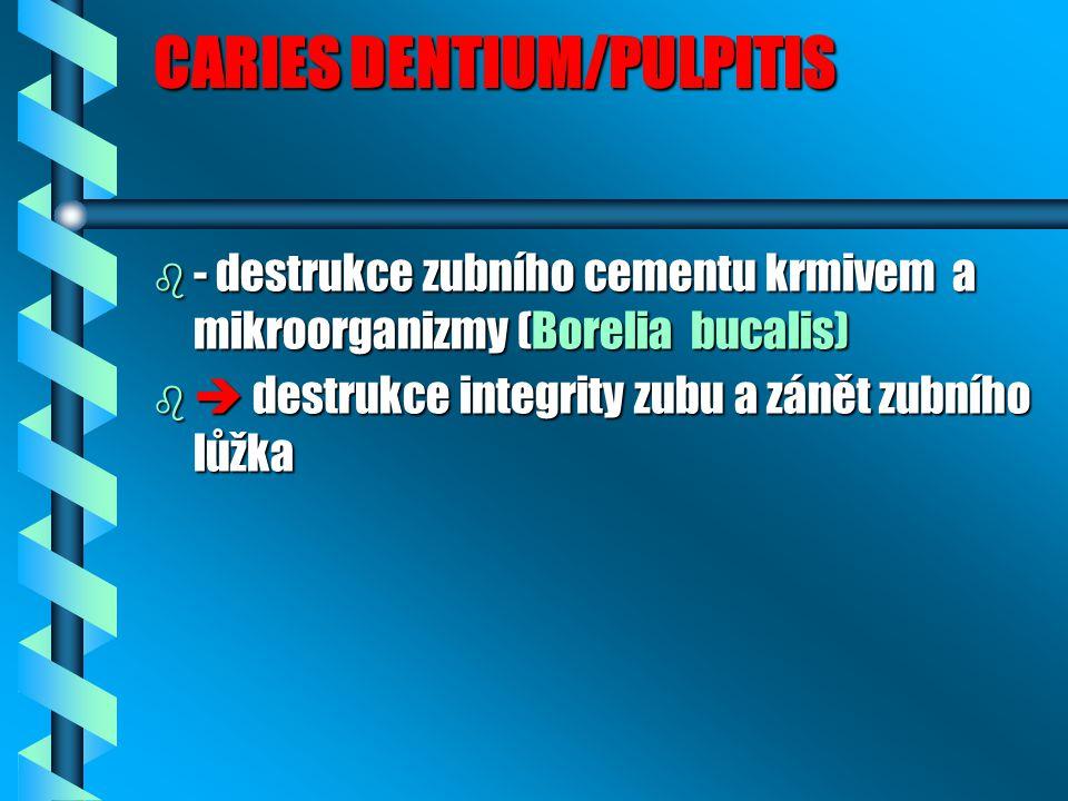 CARIES DENTIUM/PULPITIS