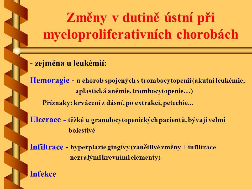 Změny v dutině ústní při myeloproliferativních chorobách