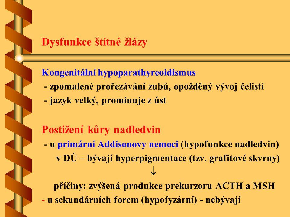 Dysfunkce štítné žlázy