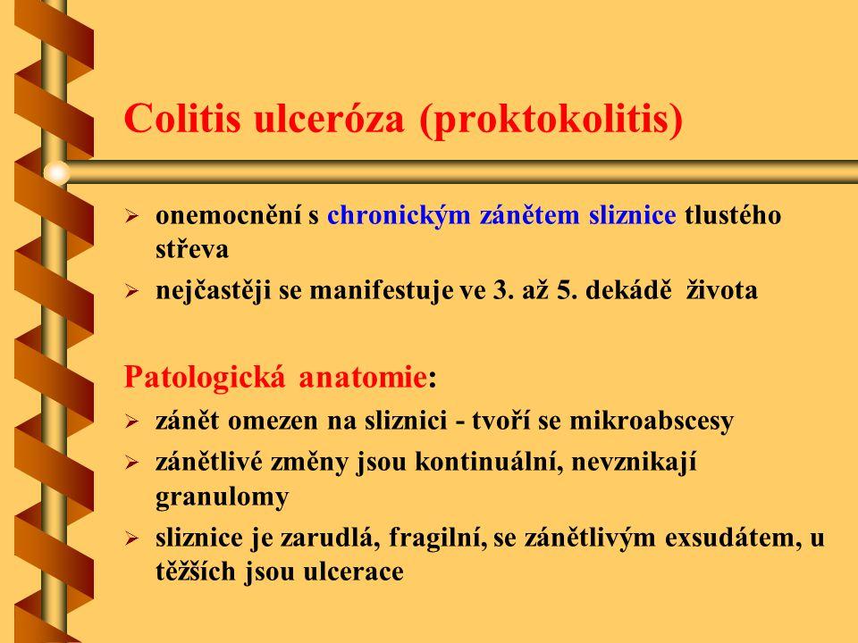 Colitis ulceróza (proktokolitis)