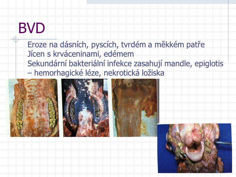 BVD Eroze na dásních, pyscích, tvrdém a měkkém patře