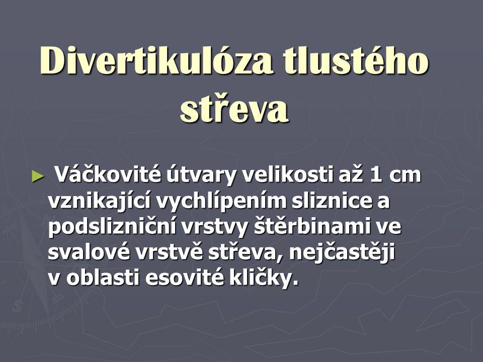 Divertikulóza tlustého střeva