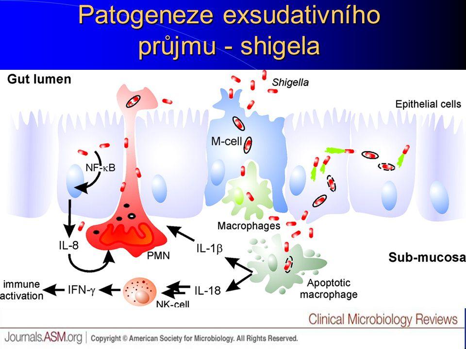 Patogeneze exsudativního průjmu - shigela
