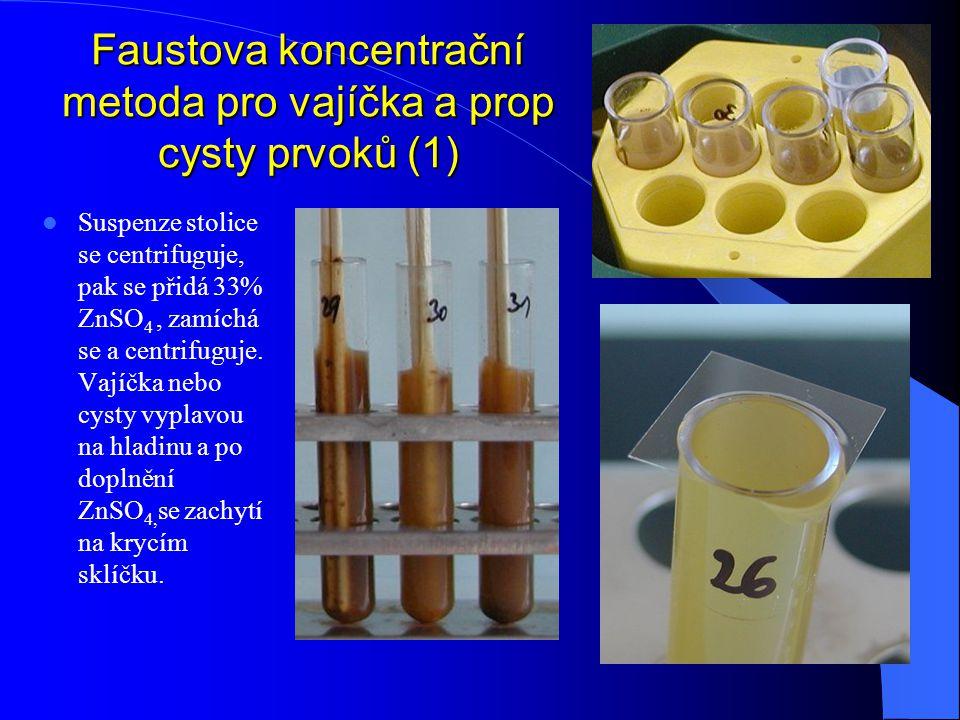 Faustova koncentrační metoda pro vajíčka a prop cysty prvoků (1)