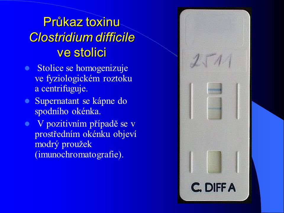 Průkaz toxinu Clostridium difficile ve stolici
