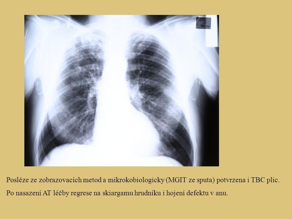 Posléze ze zobrazovacích metod a mikrokobiologicky (MGIT ze sputa) potvrzena i TBC plic.