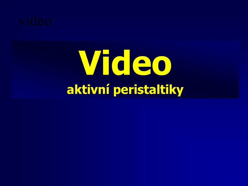 video Video aktivní peristaltiky