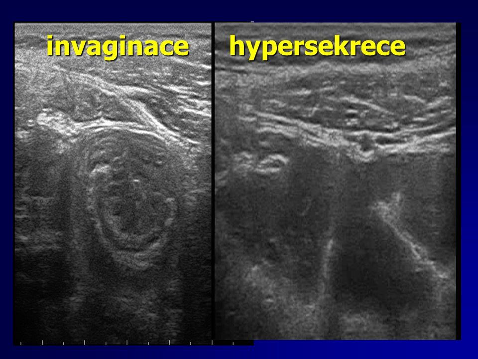 invaginace hypersekrece