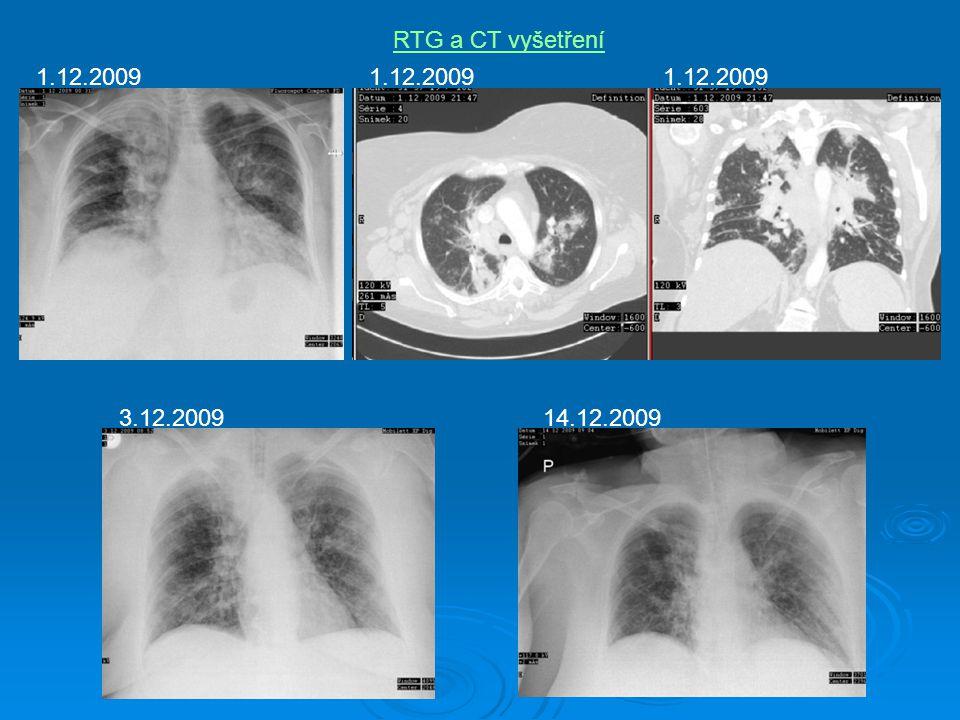 RTG a CT vyšetření 1.12.2009 1.12.2009 1.12.2009 3.12.2009 14.12.2009