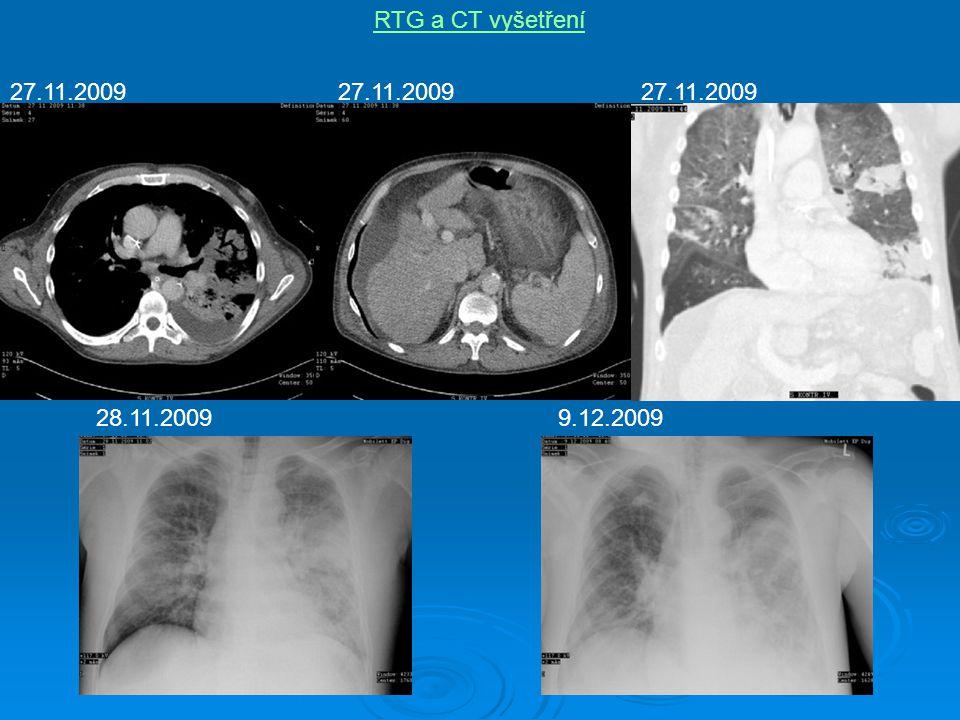 RTG a CT vyšetření 27.11.2009 27.11.2009 27.11.2009 28.11.2009 9.12.2009