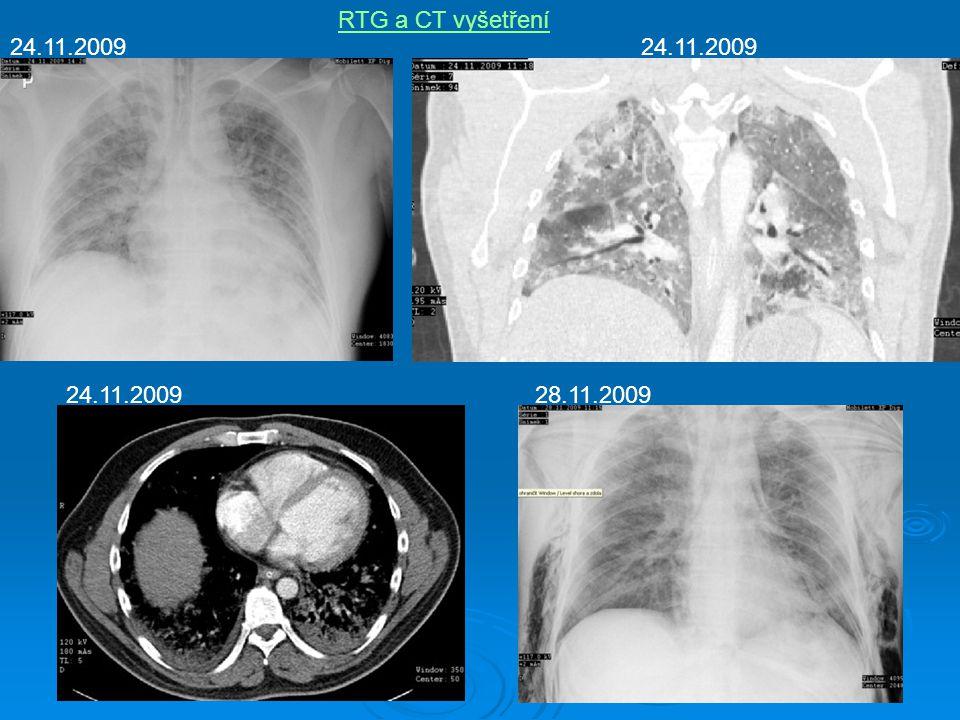 RTG a CT vyšetření 24.11.2009 24.11.2009 24.11.2009 28.11.2009