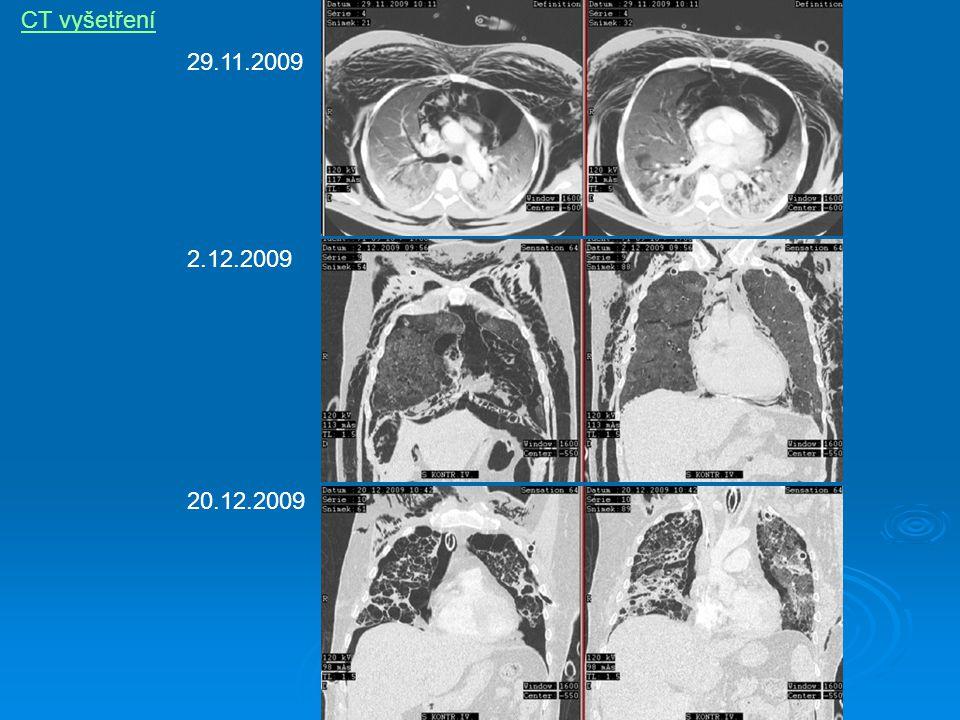 CT vyšetření 29.11.2009 2.12.2009 20.12.2009