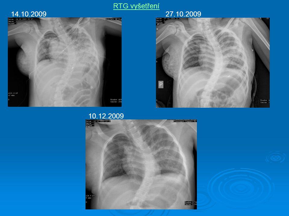 RTG vyšetření 14.10.2009 27.10.2009 10.12.2009