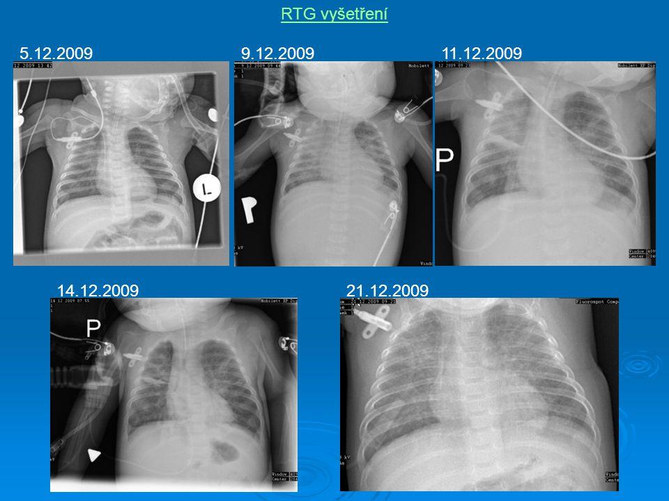 RTG vyšetření 5.12.2009 9.12.2009 11.12.2009 14.12.2009 21.12.2009