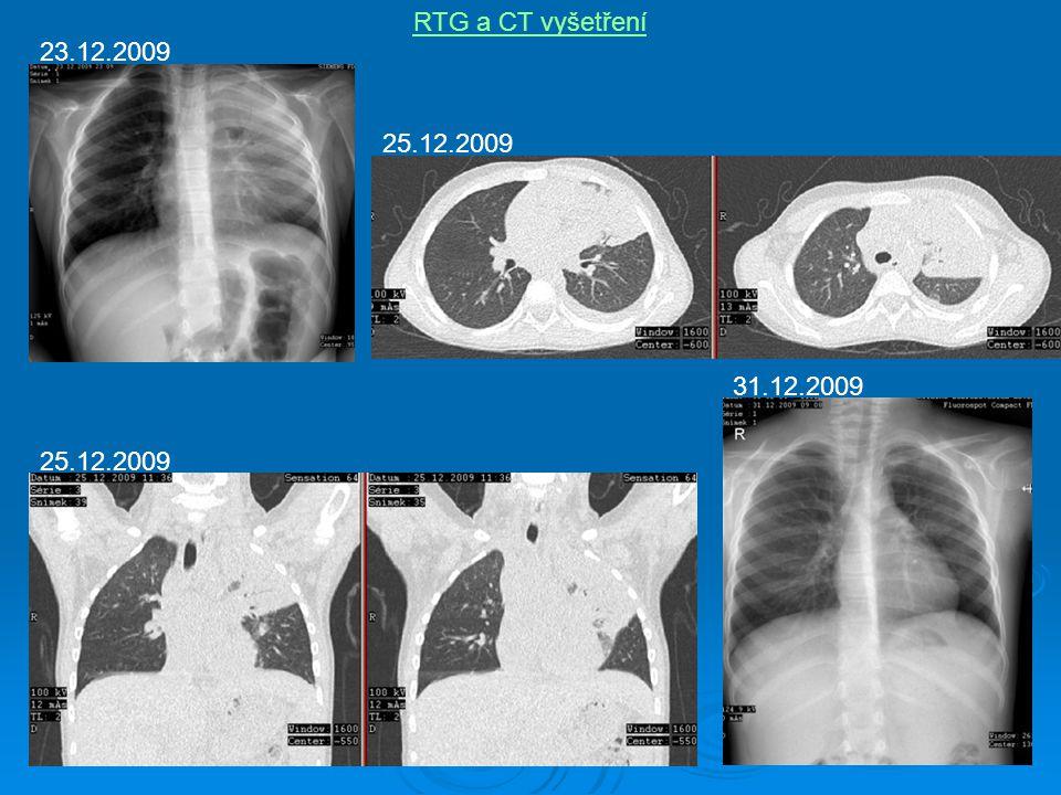 RTG a CT vyšetření 23.12.2009 25.12.2009 31.12.2009 25.12.2009