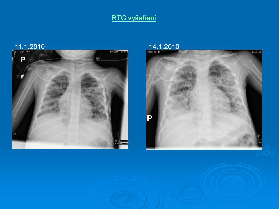 RTG vyšetření 11.1.2010 14.1.2010