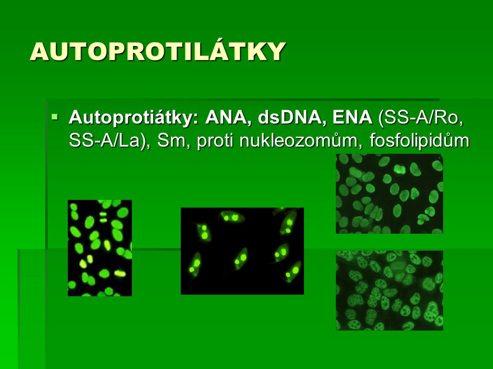 AUTOPROTILÁTKY Autoprotiátky: ANA, dsDNA, ENA (SS-A/Ro, SS-A/La), Sm, proti nukleozomům, fosfolipidům.