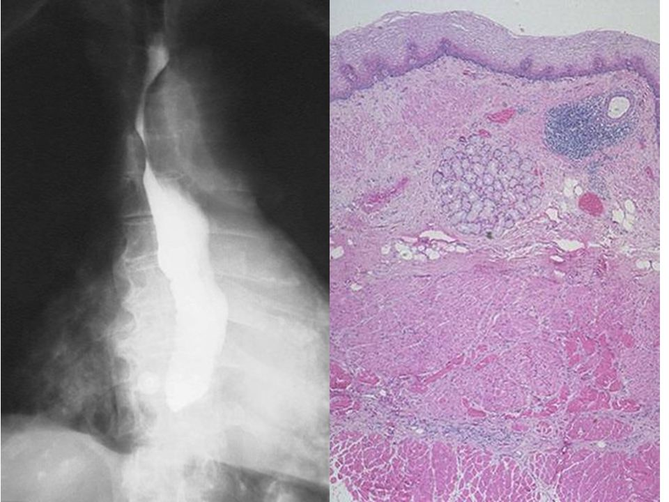 This is normal esophageal squamous mucosa at the left, with underlying submucosa containing mucus glands and a duct surrounded by lymphoid tissue. The muscularis is at the right