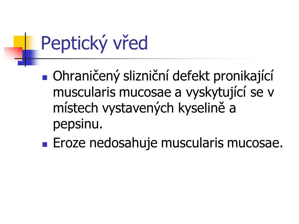 Peptický vřed Ohraničený slizniční defekt pronikající muscularis mucosae a vyskytující se v místech vystavených kyselině a pepsinu.