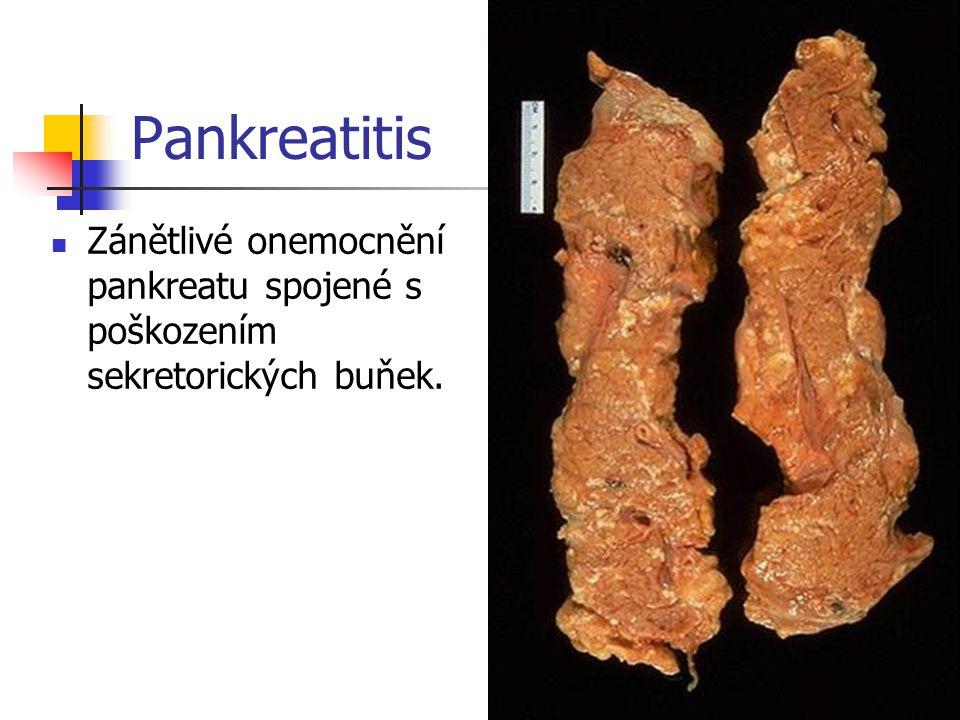 Pankreatitis Zánětlivé onemocnění pankreatu spojené s poškozením sekretorických buňek.