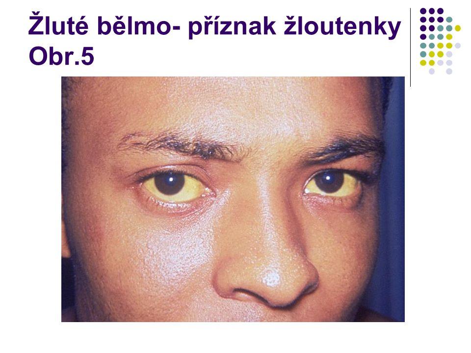 Žluté bělmo- příznak žloutenky Obr.5