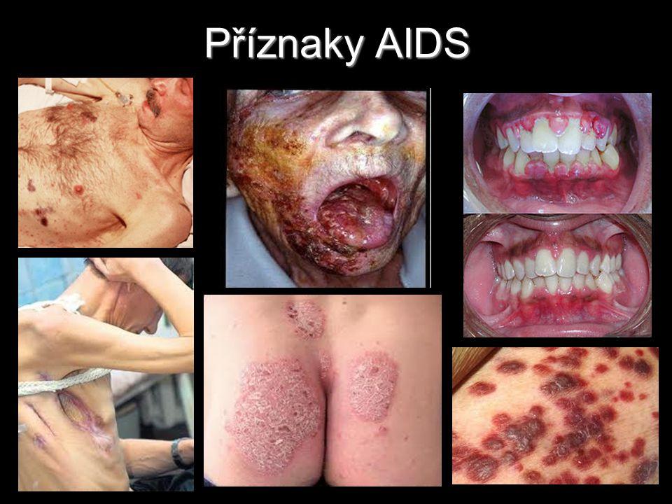 Příznaky AIDS