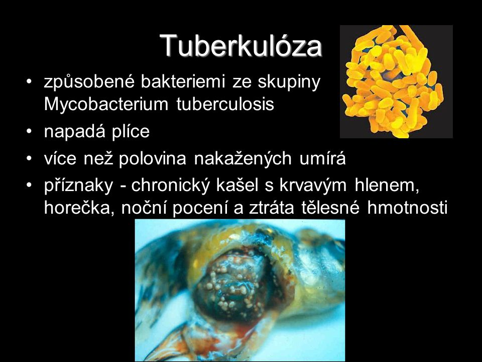 Tuberkulóza způsobené bakteriemi ze skupiny Mycobacterium tuberculosis