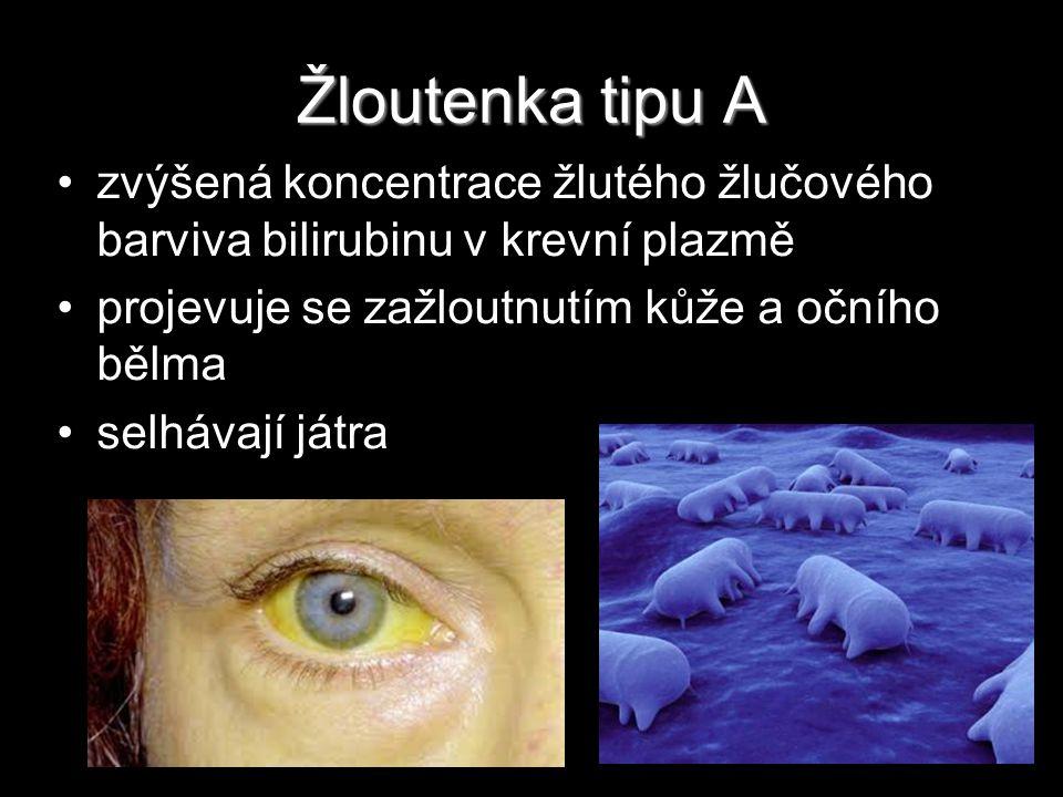 Žloutenka tipu A zvýšená koncentrace žlutého žlučového barviva bilirubinu v krevní plazmě. projevuje se zažloutnutím kůže a očního bělma.