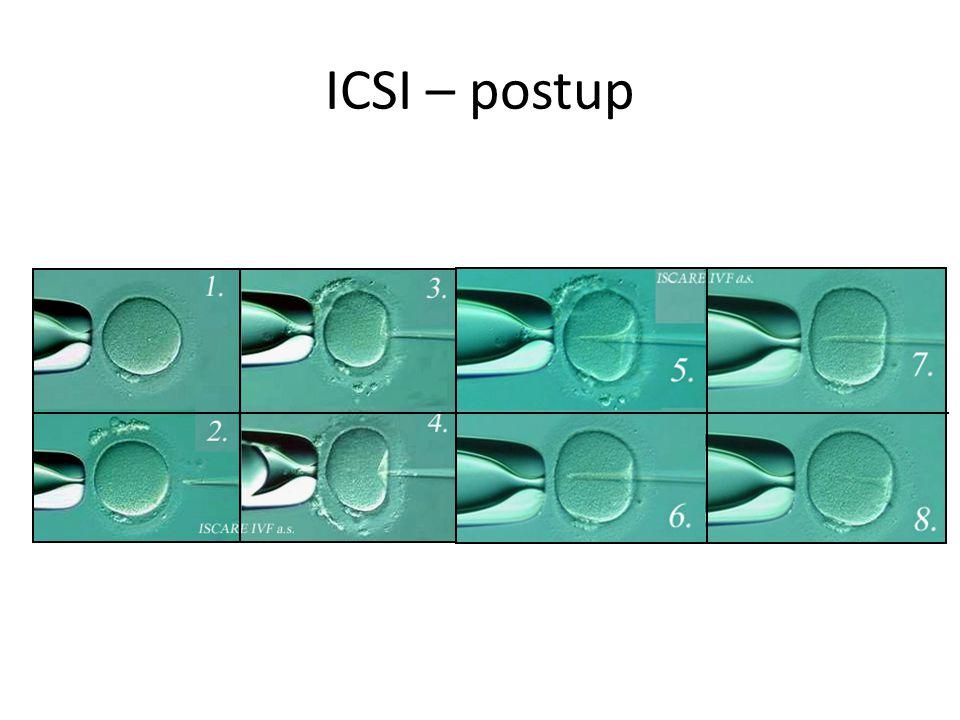 ICSI – postup